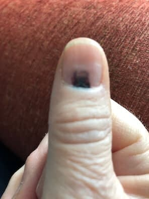 Thumb with bruise on nail